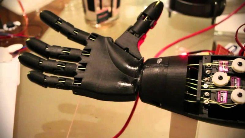 Open bionics bionic arm
